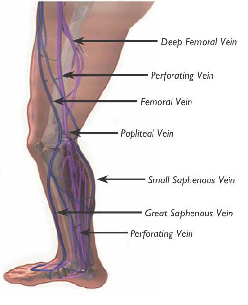 Healthy Viewpointsvenous Disease Under Appreciated Cause Of Leg Pain
